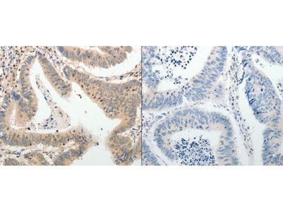 Anti-ADAMTS2 Rabbit Polyclonal Antibody