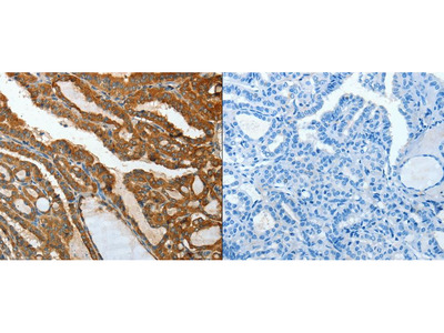 Anti-IL12RB1 Rabbit Polyclonal Antibody