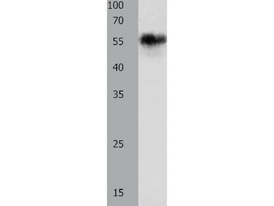 Anti-CHRNA3 Rabbit Polyclonal Antibody