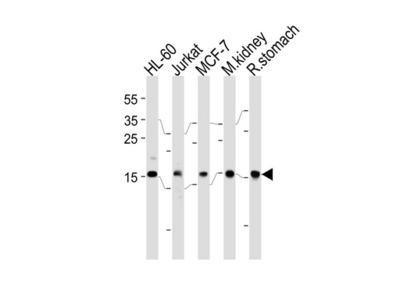 Rabbit polyclonal NME2 Antibody (N-term)