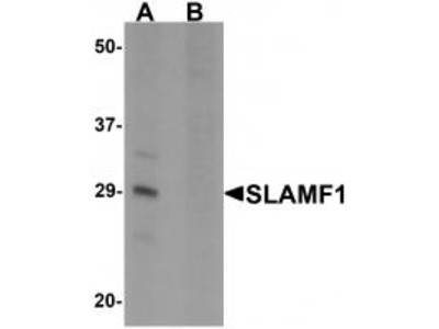 Rabbit Polyclonal SLAMF1 Antibody
