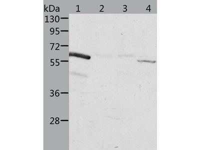 Anti-ALDH6A1 rabbit polyclonal antibody