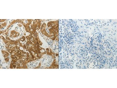 Anti-MC4R Rabbit Polyclonal Antibody