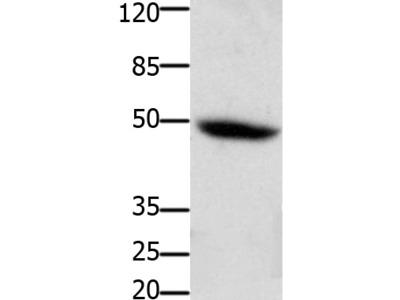Anti-CSF2RA Rabbit Polyclonal Antibody