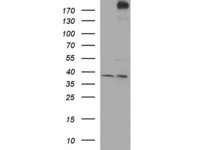 Rabbit Polyclonal CHD5 Antibody