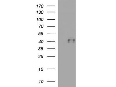Rabbit Polyclonal CTBS Antibody