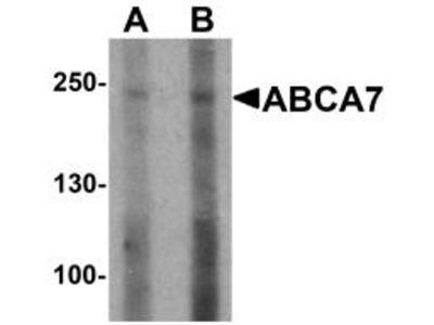 Rabbit Polyclonal ABCA7 Antibody
