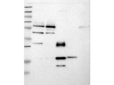 Rabbit Polyclonal KPNA5 Antibody