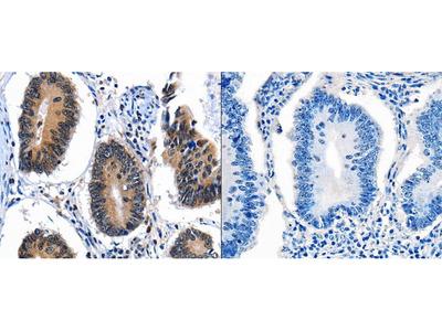Anti-CEBPG Rabbit Polyclonal Antibody
