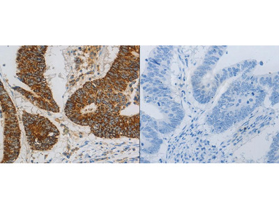 Anti-CCNF Rabbit Polyclonal Antibody