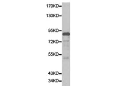 Anti-ERCC3 Rabbit Polyclonal Antibody
