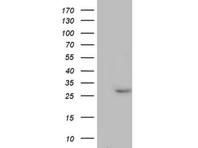 PAFAH1B3 mouse monoclonal antibody, clone OTI2D3 (formerly 2D3)
