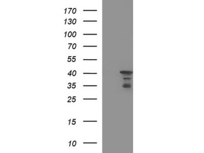 Purified HERPUD1 mouse monoclonal antibody, clone OTI1A2 (formerly 1A2)