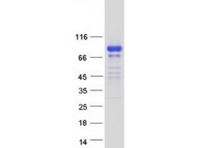 SCHIP1 (IQCJ-SCHIP1) (NM_001197114) Human Recombinant Protein