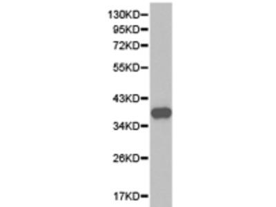 Anti-THPO Rabbit Polyclonal Antibody