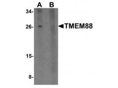 Rabbit Polyclonal TMEM88 Antibody