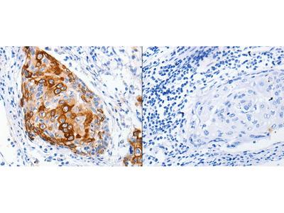 Anti-NFATC1 Rabbit Polyclonal Antibody