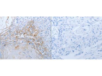 Anti-JUP Rabbit Polyclonal Antibody