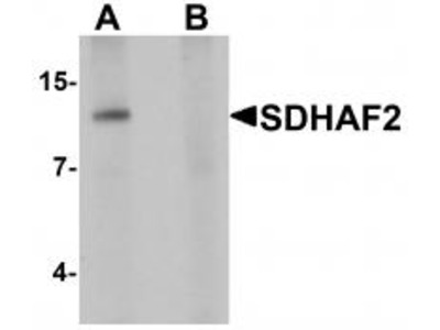 Chicken Polyclonal SDHAF2 Antibody