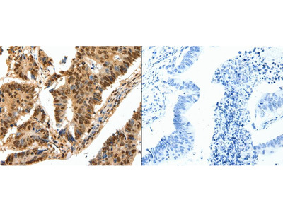 Anti-SSB Rabbit Polyclonal Antibody