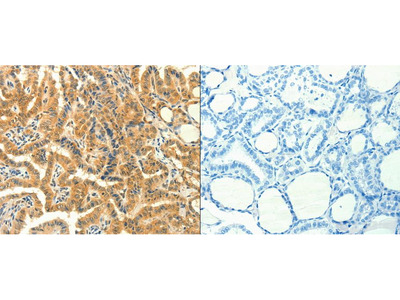 Anti-PRKACG Rabbit Polyclonal Antibody