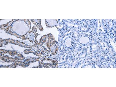 Anti-CCL26 Rabbit Polyclonal Antibody