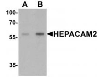 Rabbit Polyclonal HEPACAM2 Antibody