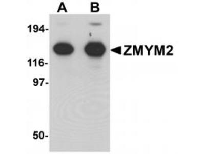 Rabbit Polyclonal ZMYM2 Antibody