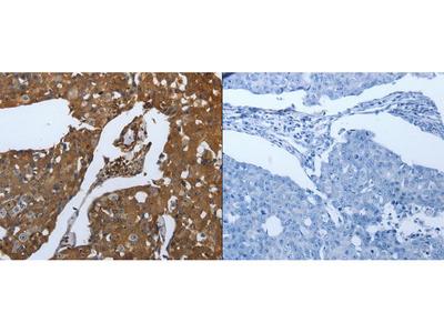 Anti-SLC34A2 Rabbit Polyclonal Antibody