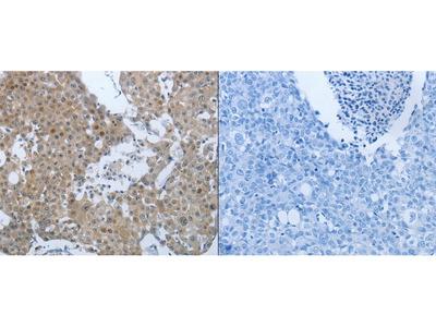 Anti-CCL15 Rabbit Polyclonal Antibody