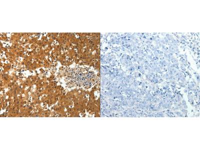 Anti-PTPRE Rabbit Polyclonal Antibody