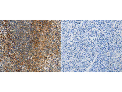 Anti-PPP2CB Rabbit Polyclonal Antibody