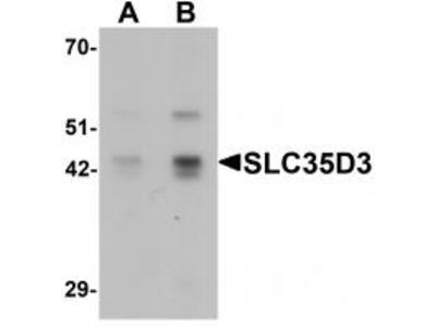 Rabbit Polyclonal SLC35D3 Antibody