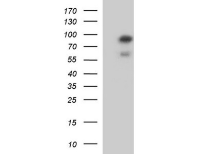 Rabbit Polyclonal SKI Antibody