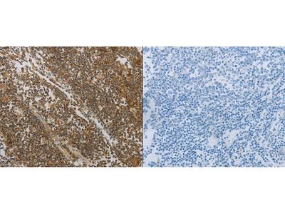 Anti-NOTCH4 Rabbit Polyclonal Antibody