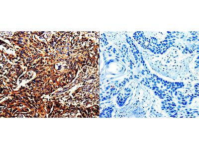Anti-DAZ4 Rabbit Polyclonal Antibody