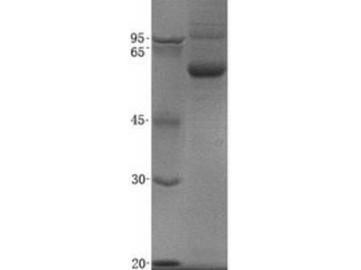 Semaphorin 3c (SEMA3C) (NM_006379) Human Recombinant Protein