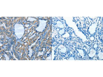 Anti-ADCK4 Rabbit Polyclonal Antibody