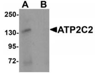 Rabbit Polyclonal ATP2C2 Antibody