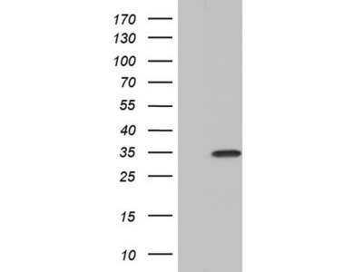 Carrier-free (BSA/glycerol-free) PAFAH1B3 mouse monoclonal antibody, clone OTI2A5 (formerly 2A5)