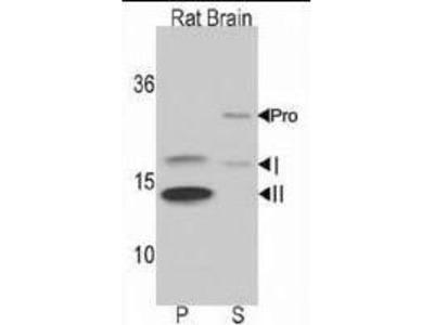 Rabbit polyclonal LC3 Antibody (APG8B) (N-term)