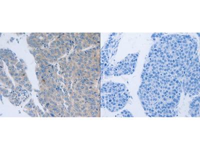 Anti-GRIN1 Rabbit Polyclonal Antibody