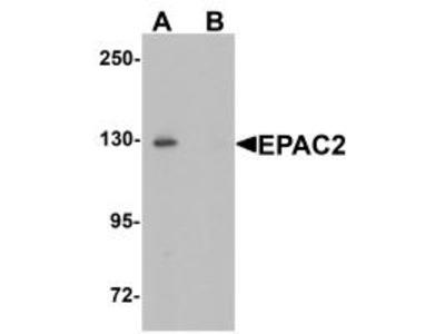 Rabbit Polyclonal EPAC2 Antibody