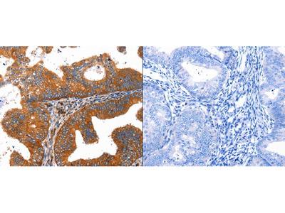 Anti-CMTM6 Rabbit Polyclonal Antibody