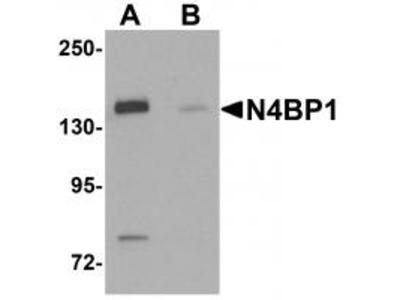 Rabbit Polyclonal N4BP1 Antibody