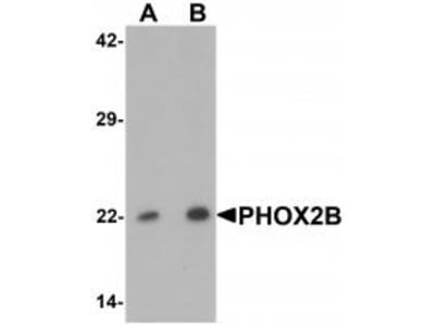 Rabbit Polyclonal PHOX2B Antibody