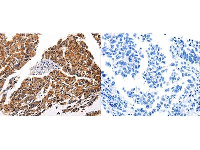 Anti-IL1RAP Rabbit Polyclonal Antibody
