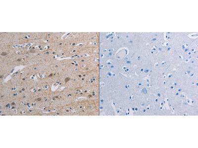 Anti-TONSL Rabbit Polyclonal Antibody