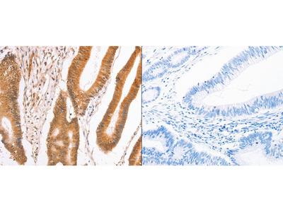Anti-TAX1BP1 Rabbit Polyclonal Antibody