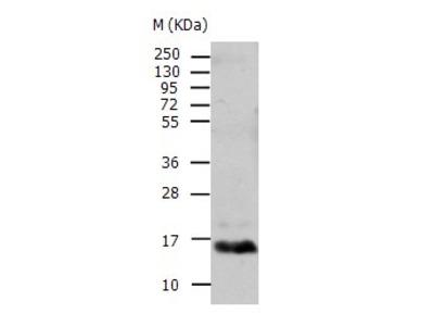 Anti-TTR Rabbit Polyclonal Antibody